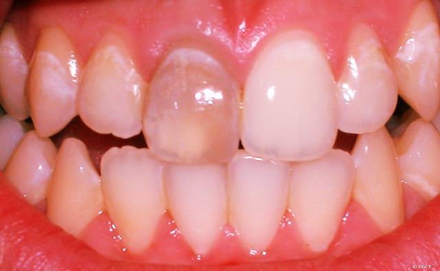 Zahn wird grau